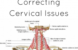 correcting cervical issues